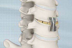 Anterior-Cervical-Discectomy