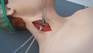 Anterior Cervical Discectomy_procedure